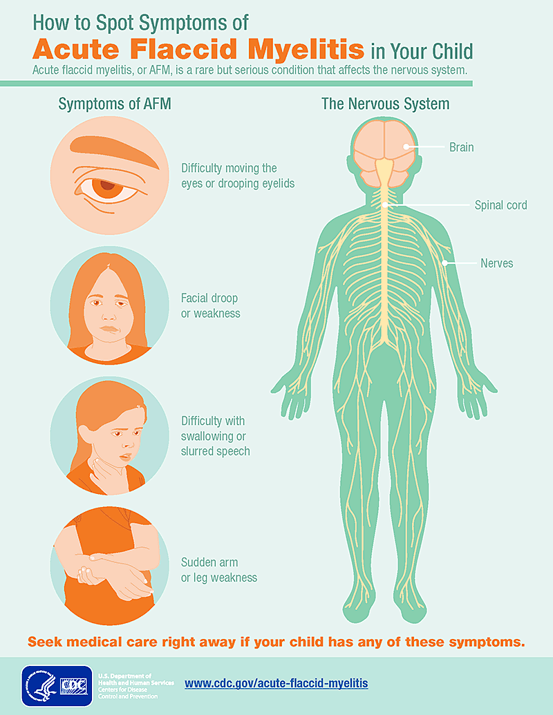 afm-symptoms-infographic_1556543183786.png